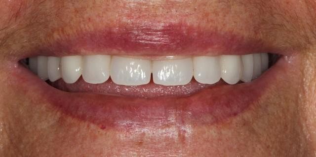 ολικεσ οδοντοστοιχιες μετα